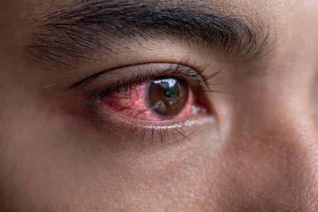أمراض العيون