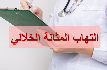 التهاب المثانة الخلالي