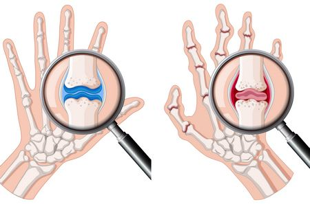 التهاب المفاصل الروماتويدي