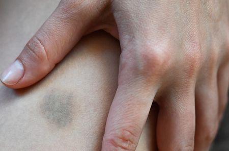 الكدمات والبقع الزرقاء تحت الجلد