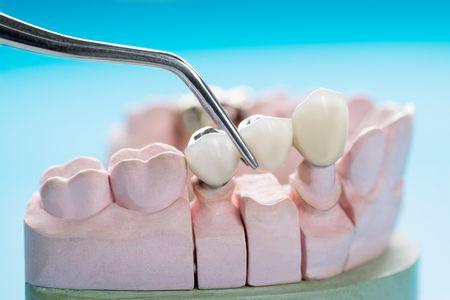 تركيبات الأسنان