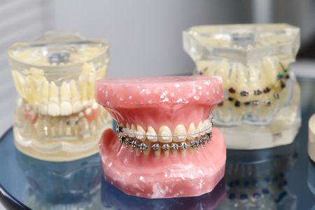تقويم الأسنان للأطفال