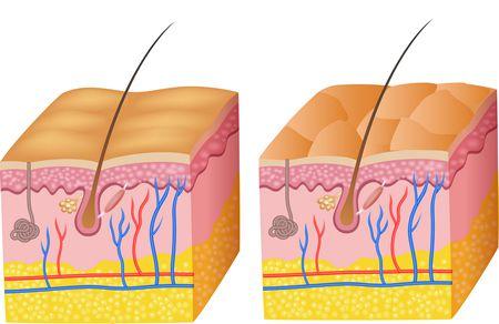 جهاز fractional laser العلاج الأمثل للتصبغات الجلدية
