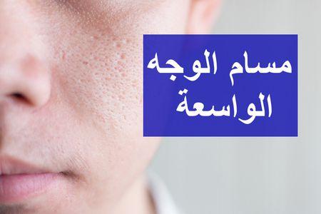 مسام الوجه الواسعة