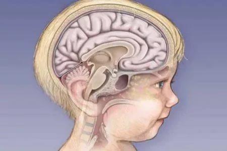 معلومات عن ضمور المخ عند الاطفال