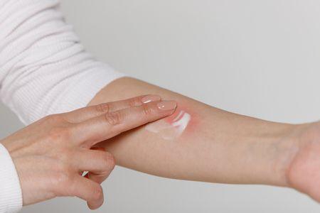 الأمراض الجلدية