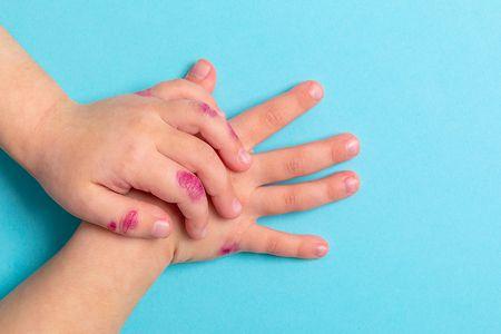 الإكزيما عند الأطفال