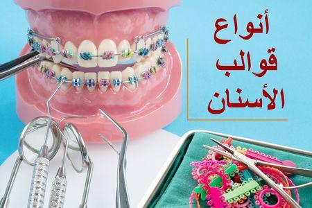 قوالب الأسنان