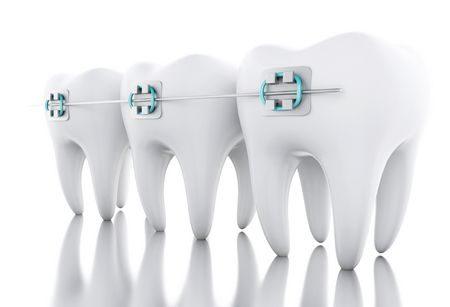 طب الأسنان , teeth , صورة