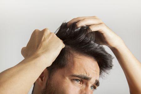 صورة , تساقط الشعر , الصلع