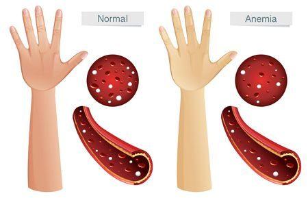 فقر الدم ، Anemia ، الأنيميا ، صورة