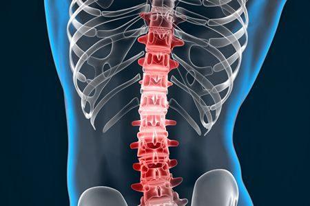صورة , جسم الإنسان , العمود الفقري , العمليات الجراحية