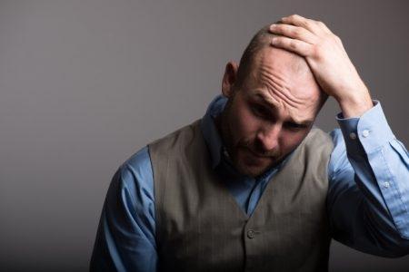 صورة , رجل , يعاني من الصلع , أمراض الشعر