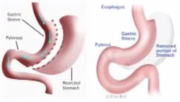 ,جراحات السمنة،العمليات الجراحية, السمنة، علاجات السمنة، تكميم المعدةBariatric surgery,Bariatric surgery،صورة
