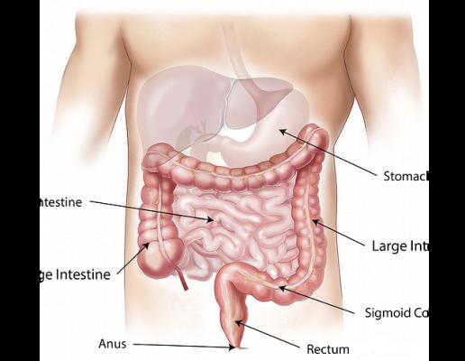 Benign prostatic hyperplasia,BPH,تضخم البروستاتا الحميد،صورة