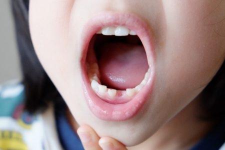 صورة , أسنان , نزيف اللثة المستمر