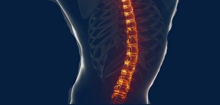 ألم ،عظمة العصعص،العظام،صورة