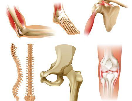 صورة , ضعف العظام , نقص الكالسيوم
