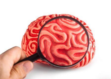 صورة , الدماغ , نزيف الدماغ , مرض الهيموفيليا