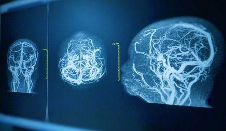 أورام الدماغ