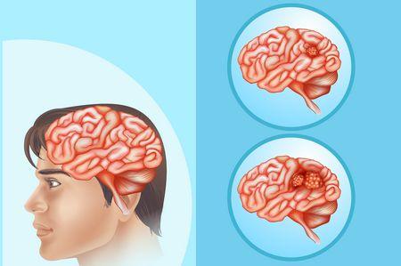صورة , الشلل الدماغي , الدماغ