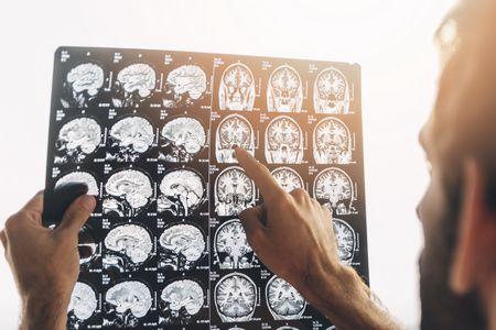 أشعة CT , أشعة MRI