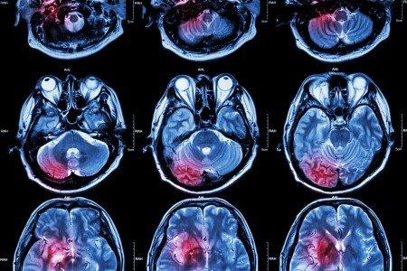 الأورام السرطانية ، علاج السرطان ، العلاج الإشعاعي ، الكيماوي
