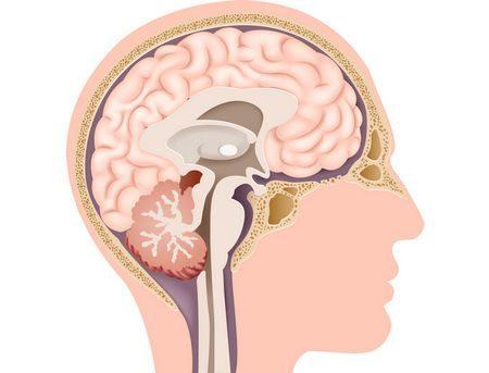 ضمور المخيخ ، Cerebellar atrophy ، مرض ، صورة