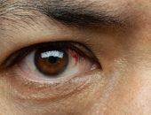 رمد العين , Conjunctivitis eye , صورة