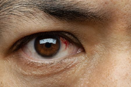 ما هو علاج مرض رمد العين - موقع المزيد