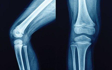 زراعة المفصل ، التهابات المفاصل ، أمراض العظام