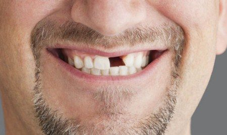 زراعة الأسنان ، الزراعة السنية ، تجميل الأسنان