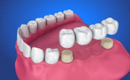 تركيبات الأسنان ، العناية بالأسنان ، التهاب اللثة ، عمليات الأسنان