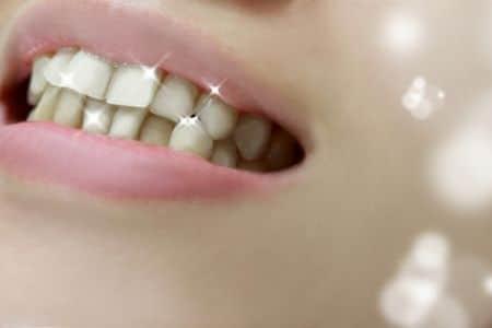 زراعة الأسنان ، صورة ، أسنان ، سن