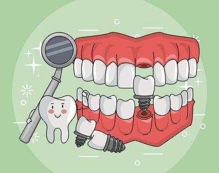 صورة , أسنان , زرعات الأسنان