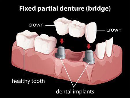 صورة , زراعة الأسنان , أسنان , تعويض الأسنان