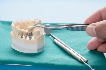 صورة , زراعة الأسنان , طبيب الأسنان