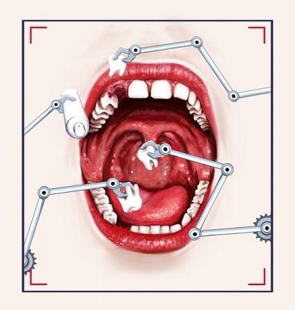 صورة , عملية زراعة الأسنان , فشل الزراعة