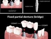 زراعة الأسنان ، العناية بالأسنان ، التهابات اللثة ، نظافة الأسنان