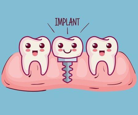 زراعة الأسنان ، التهابات اللثة ، خلع الأسنان ، تركيب السن