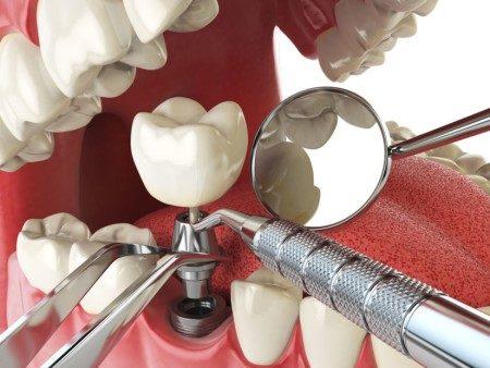 زراعة الأسنان ، عصب الأسنان ، التهابات اللثة