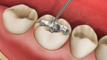 الأسنان ، عصب الأسنان ، تسوس الأسنان ، عظم الفكين