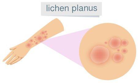 التهاب الجلد ، فيروسات الجلد ، اكزيما ، الحمامي العقدة