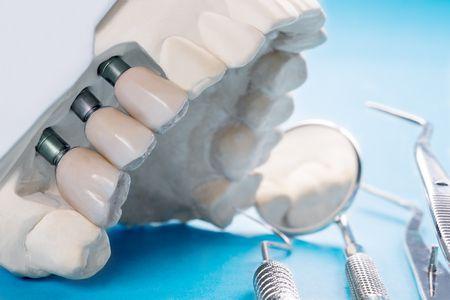 علاج إنحراف الأسنان