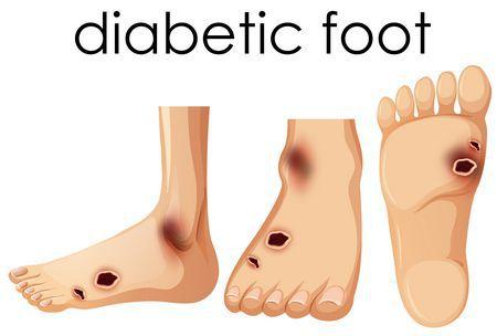 صورة , القدم , القدم السكري , مرض السكري
