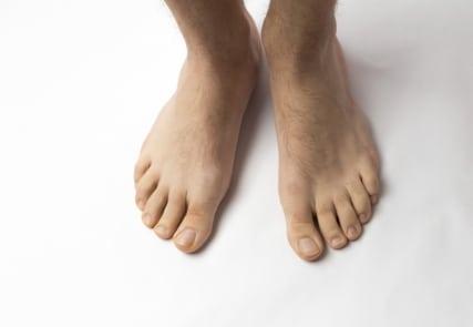 القدم السكرية،السكر،صورة
