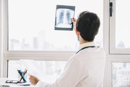 صورة , طبيب , أشعة , مرض السرطان