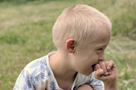 صورة , طفل , متلازمة داون , ذوي الإعاقة