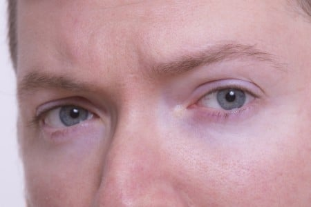 جفاف العين ، رجل ، صورة ، الغدة الدمعية