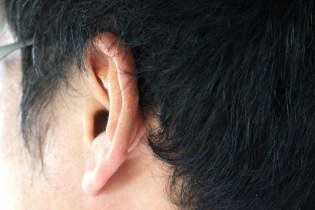 التهاب الأذن ، صورة